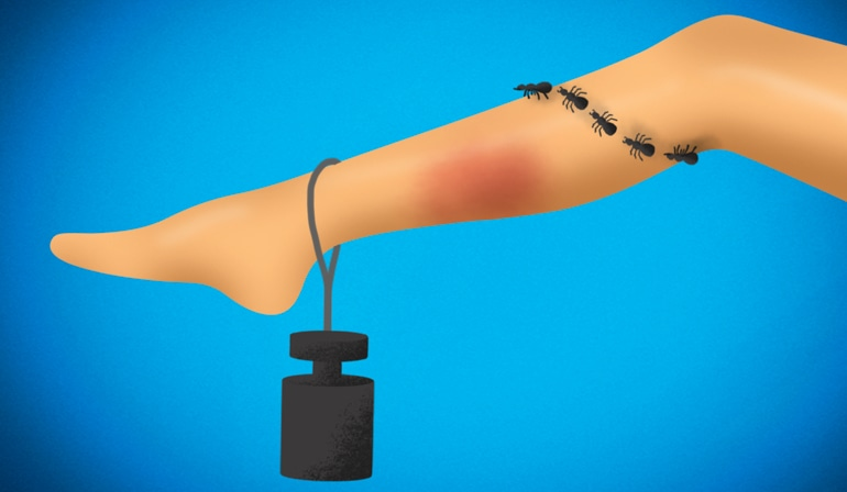 Тежест, повърхностни разширени вени и зачервяване на крак